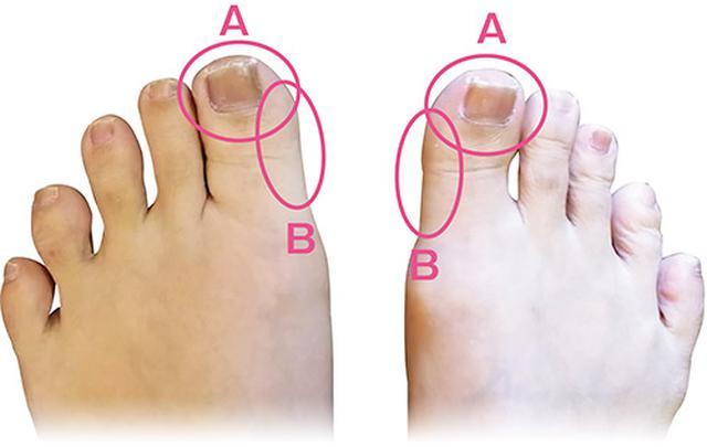 画像1: 足の裏で体の状況を診断:2