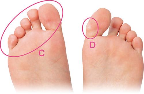 画像2: 足の裏で体の状況を診断:1