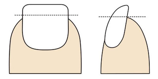 画像: 爪の切り方