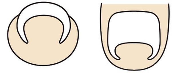 画像: 巻き爪 爪が内側に丸まった状態。痛みがない場合もある。