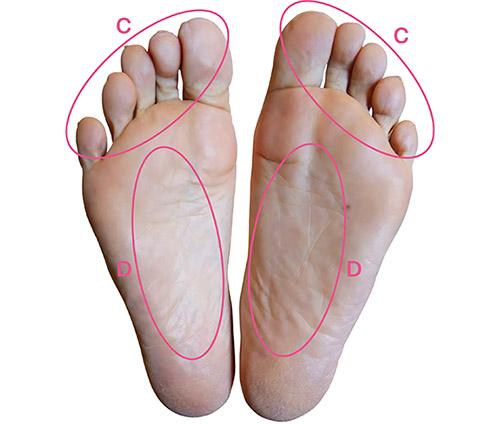 画像2: 足の裏で体の状況を診断:2