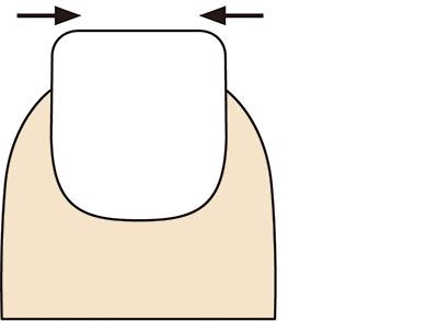 画像1: 爪の削り方