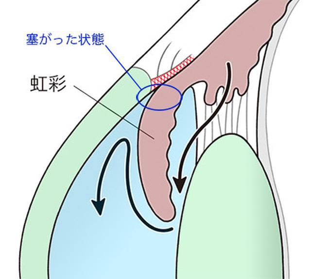 画像: 閉塞隅角緑内障