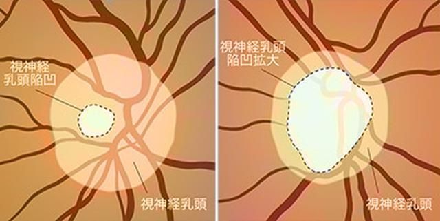 画像: 緑内障の全てが分かる一問一答 Q. 視神経乳頭陥凹拡大とはどのような状態ですか?