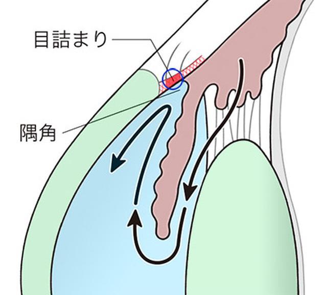 画像: 開放隅角緑内障