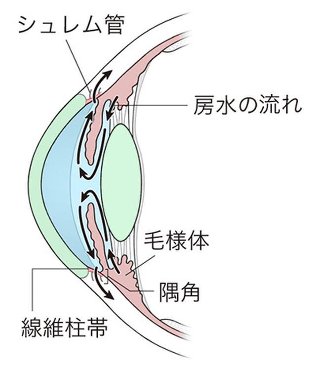 画像: 緑内障の全てが分かる一問一答 Q. 視神経が障害される原因は何ですか?