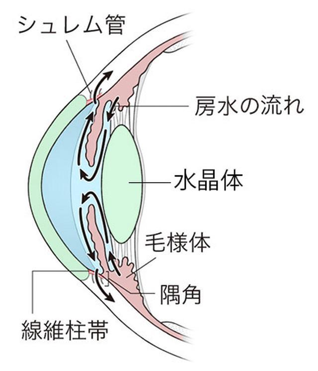 画像: 緑内障の全てが分かる一問一答 Q. 緑内障なのに、白内障の手術を勧められたのはなぜですか?
