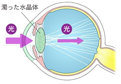 画像: 白内障の眼球