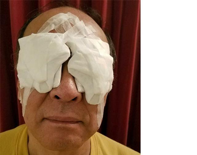 画像: 術後はガーゼで両目を覆って就寝