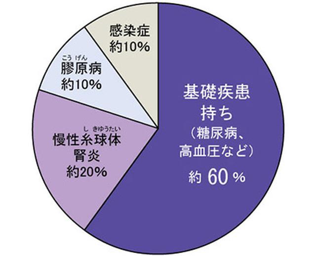 画像: 腎臓病患者のタイプ別割合 糖尿病や高血圧など、生活習慣病の人が半分以上を占めている。