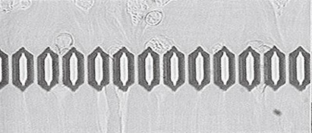 画像: ❷ にがり水を飲用後 赤血球の滞りもなく血液サラサラ[写真協力/赤穂化成]