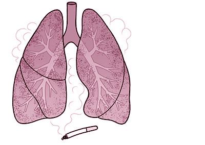 画像: 喫煙で肺胞が壊れてしまい、肺機能が低下