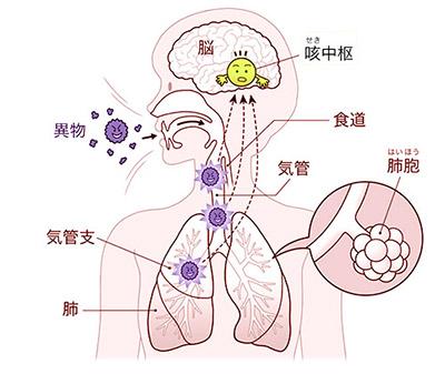 画像: ウイルス、細菌などの異物や気道の炎症により、咳受容体が刺激されたり、その感受性が亢進したりすると、咳中枢に刺激が伝わる。