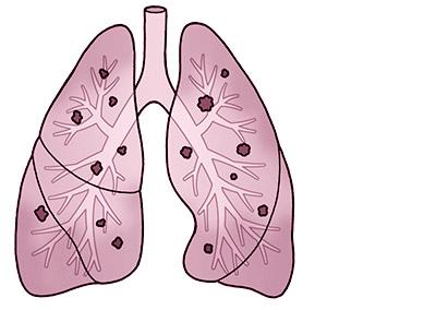 画像: 細菌やウイルスなどの異物が肺に入り炎症が起こる