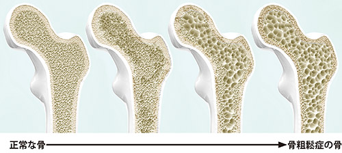 画像: 骨密度が低下していった大腿骨のイメージ 骨を内側で支えているスポンジ状の「骨梁」の太さや本数が減り、骨密度が低下する