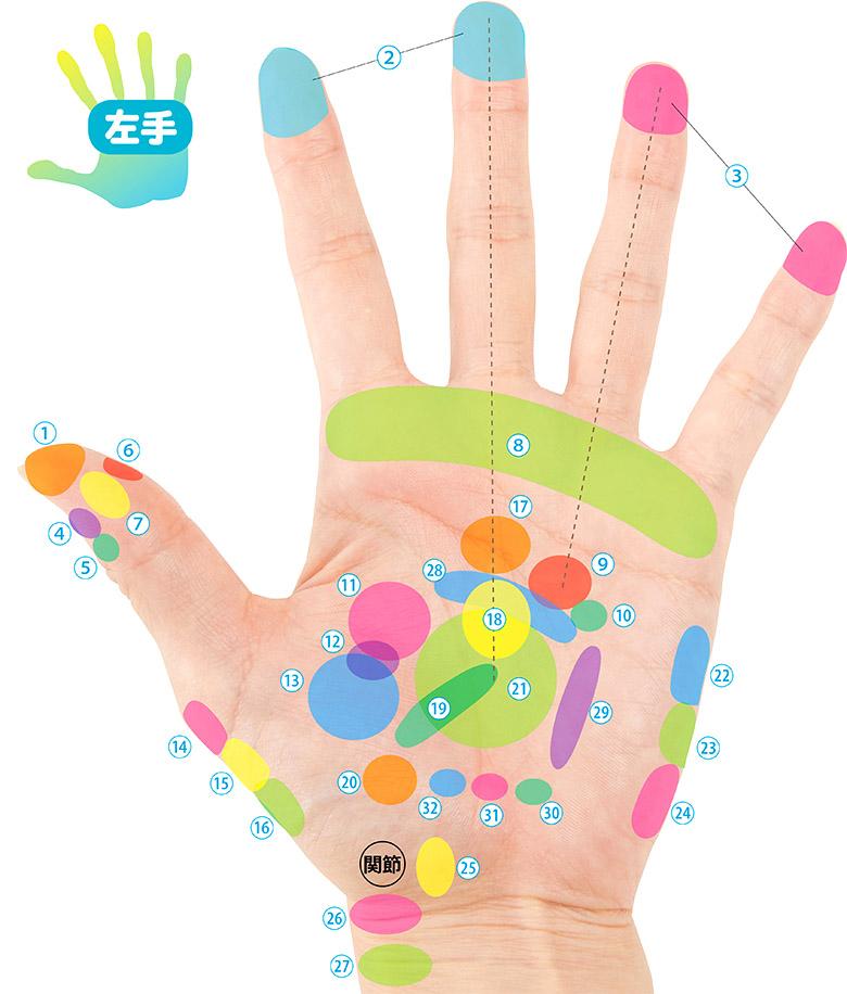 画像1: 手のひら治療地図