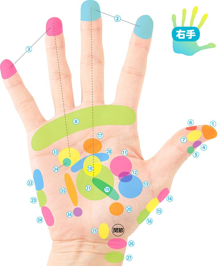 画像2: 手のひら治療地図