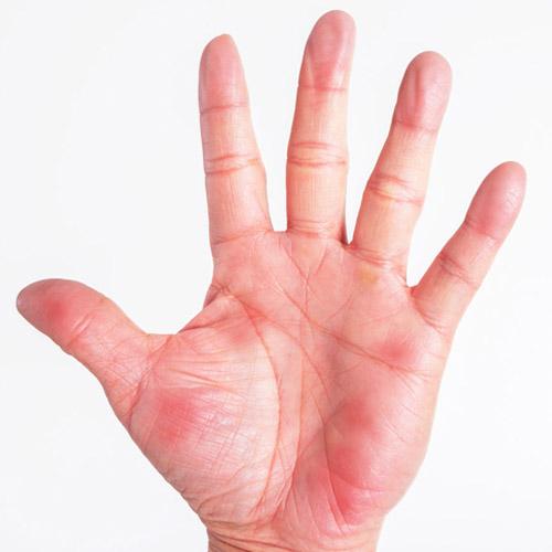 画像18: 【手のひら診断チャート】質問をたどって答えるだけ!不調の原因と「もむ場所」がわかる治療地図