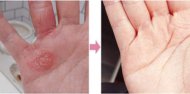 画像: 左:アトピーの炎症が出ていたAYAさんの手 右:だし酢を活用してすっかりキレイに!