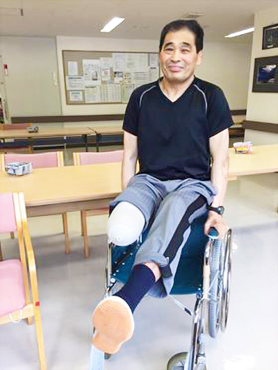 画像: 去年の6月に右足を切断