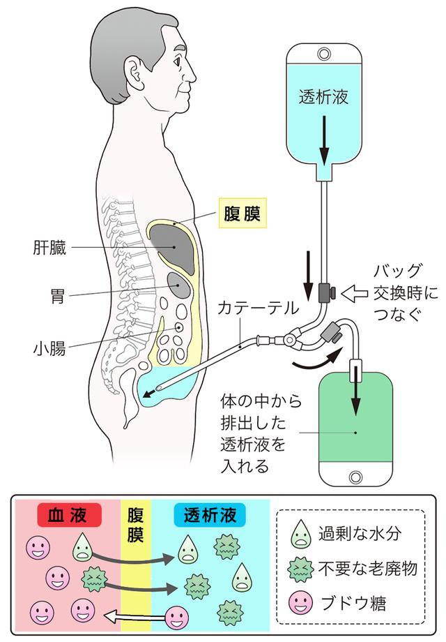 画像: 腹膜透析の方法