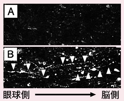 画像: Aは、視神経が傷んだマウスの網膜神経節細胞。障害により損傷している。 Bは、視神経が傷んだマウスにスペルミジンを投与。わずかではあるが、目から脳に向かう視神経(網膜神経節細胞の軸索)の再生効果が認められた。