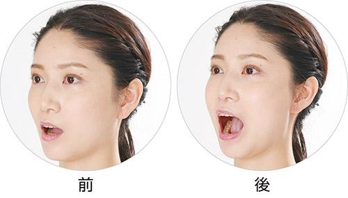 画像: 口の開きぐあいがよくなる。