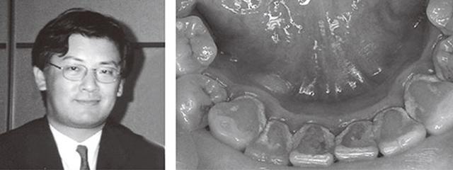 画像: 糖尿病予備群だったころの西田先生。体重は92kgあり、リンゴをかじると血が出るほどの歯周病だった。 ↓