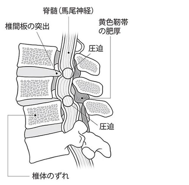 画像: Q2. なぜ脊柱管が狭窄してしまうのですか?