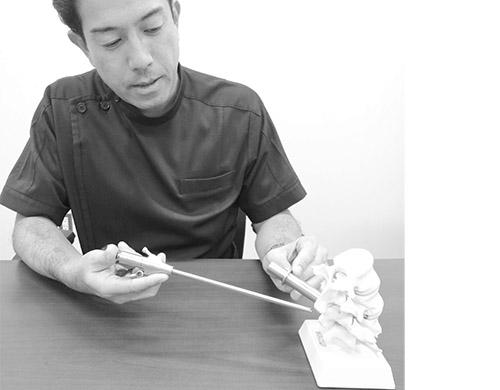 画像: 椎弓の間に操作管を差し込み骨や靭帯を削り取る「除圧術」。