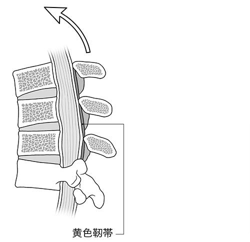 画像: 前かがみになると黄色靭帯が伸びて薄くなり、脊柱管の圧迫が弱まる。
