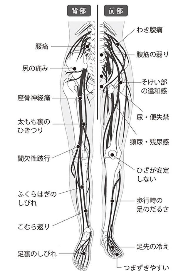 画像: 脊柱管狭窄症の代表的な症状