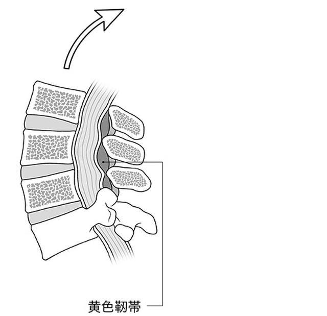 画像: 背中を反らすと黄色靭帯が縮んで厚くなり、脊柱管の圧迫が強くなる。