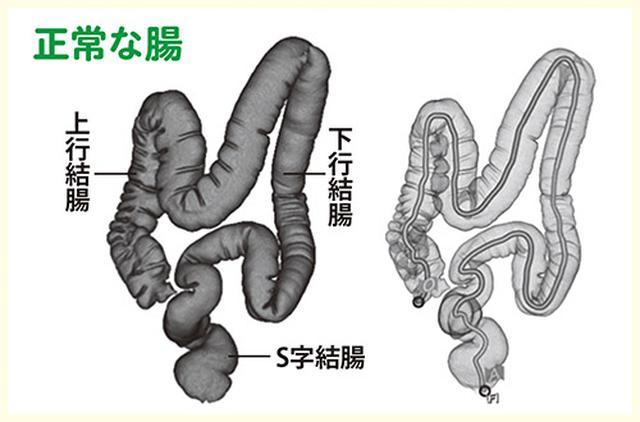 画像1: 便秘の人の大半は腸がねじれている