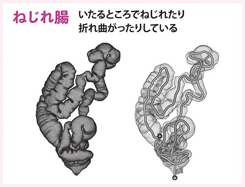 画像2: 便秘の人の大半は腸がねじれている