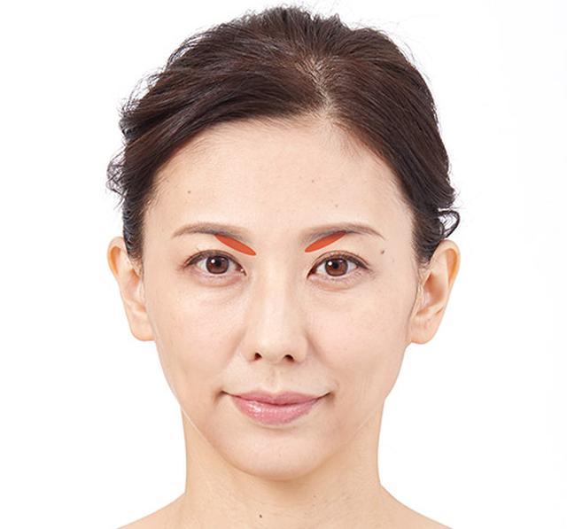 画像1: ②眼窩の上を引き上げる
