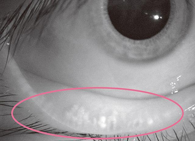 画像: 衰えたマイボーム腺 。縦じまがほとんどみられなくなっている。
