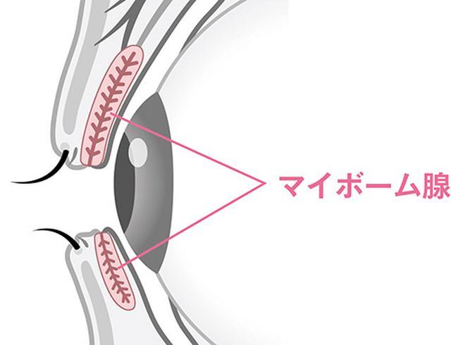 画像: マイボーム腺:上下のまぶたにあり、涙に油分を与える役割をしている。