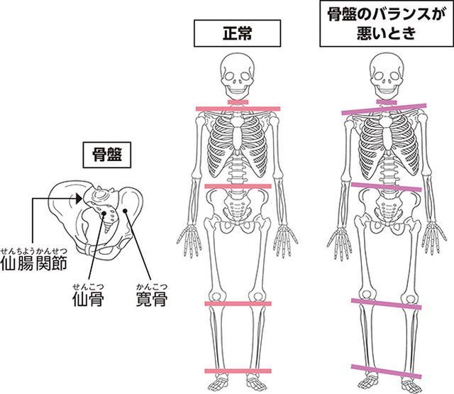 画像: 骨盤の左右バランスがくずれると全身に悪影響