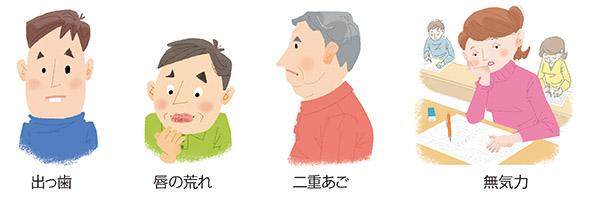 画像3: 【口呼吸チェックリスト】イビキや歯ぎしり、唇の乾燥も口呼吸のサイン 舌の位置も確認しよう