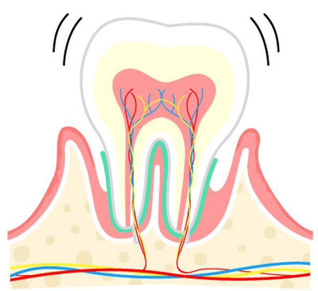 画像3: 【歯周病の予防】プラーク(歯垢)をしっかり落とす歯ブラシの選び方と歯磨き法を専門医が解説