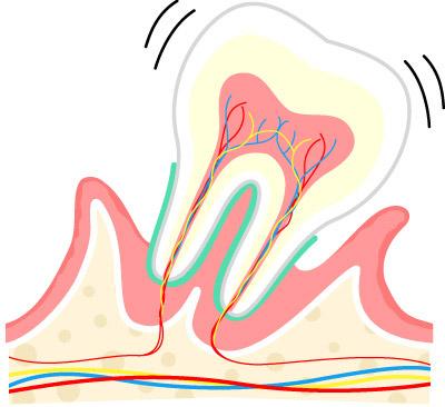 画像4: 【歯周病の予防】プラーク(歯垢)をしっかり落とす歯ブラシの選び方と歯磨き法を専門医が解説