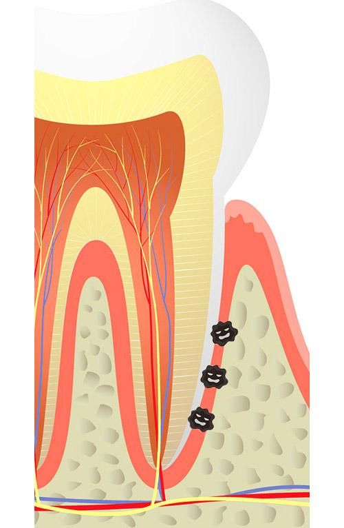 画像1: 【歯周病と認知症の関係】歯茎から菌が侵入し脳の神経細胞に到達 定期的な口中メンテナンスが予防策