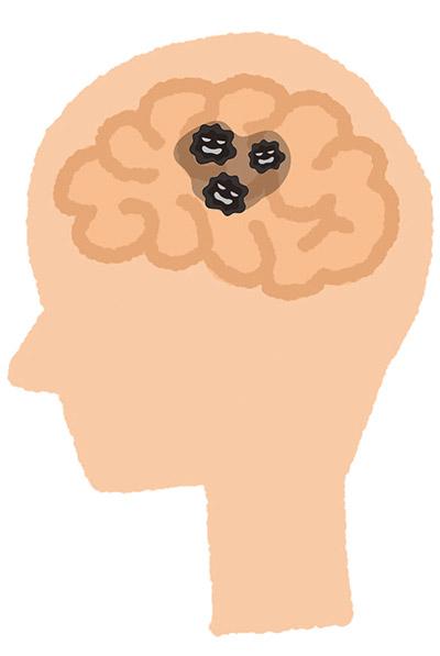 画像4: 【歯周病と認知症の関係】歯茎から菌が侵入し脳の神経細胞に到達 定期的な口中メンテナンスが予防策