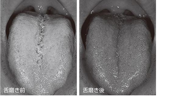 画像: 舌磨きでこんなにきれいに!