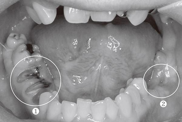 画像: ❶抜歯せず、自然に任せている部分。適切な処理をすれば、抜けるべきときに痛みなく自然に抜け、歯ぐきも下がらない。 ❷抜歯した部分。歯ぐきが下がり、骨が陥没している