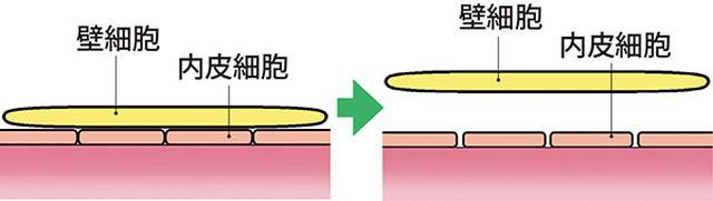 画像: 劣化すると壁細胞がはがれ、内皮細胞同士の接着がゆるくなり、隙間ができてしまう。