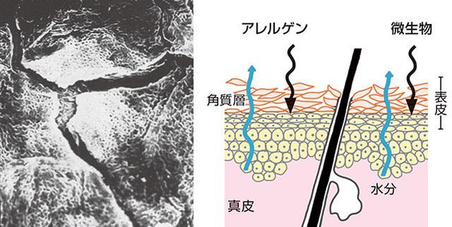 画像: 乾燥した肌