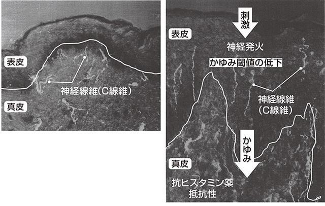 画像: 健常者(左)アトピー性皮膚炎患者 (右)