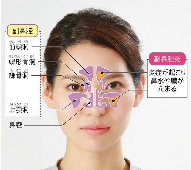 画像: 顔の骨のゆがみが整い鼻の通りが改善
